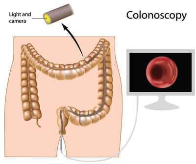 colorectal-cancer-anatomy
